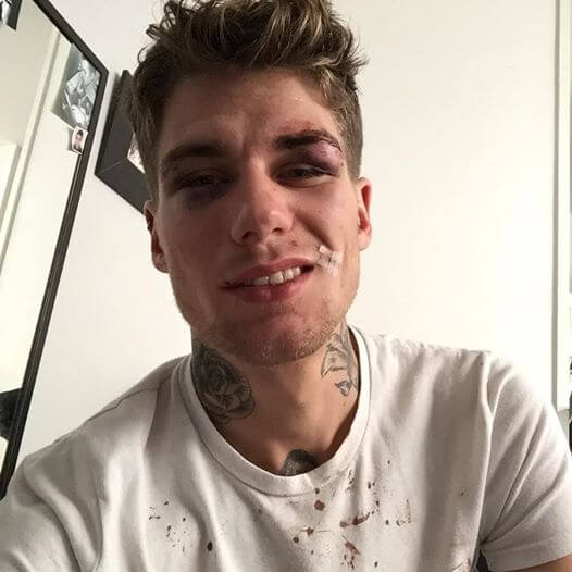 Clément Grobotek_gay_picchiato