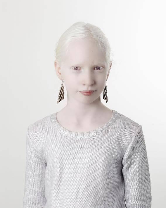 Tutti i colori del bianco: il progetto fotografico sulle persone albine